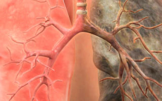Рак легких 4 стадии — симптомы перед смертью, возможно ли лечение при данном диагнозе