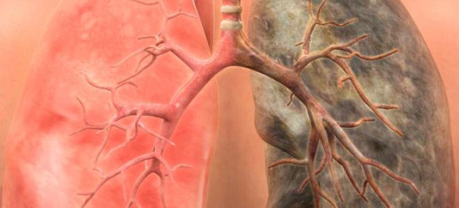 Рак легких 4 стадии