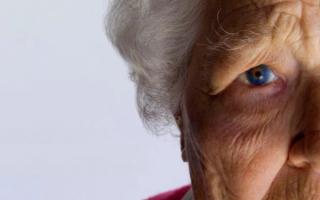 Деменция и Альцгеймера — в чем разница и особенности заболеваний