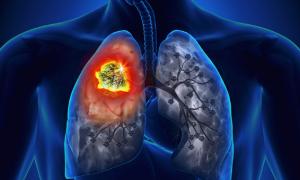 Рак легких 4 степени с метастазами — сколько живут люди с таким диагнозом