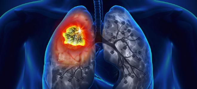 Рак легких 4 степени с метастазами
