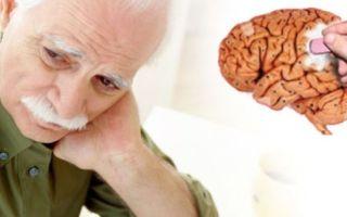 Причины болезни Альцгеймера и диагностика
