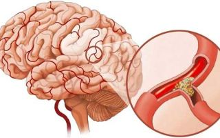 Атеросклероз сосудов головного мозга — симптомы и лечение у пожилых людей