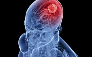 Виды рака мозга. Как лечится 4 стадия?