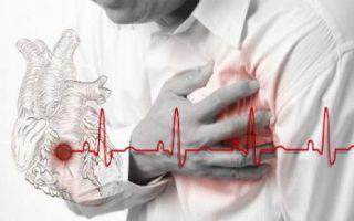 Как проявляется инфаркт? Его разновидности и причины наступления смерти