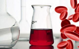 Кровь в моче у мужчин и женщин пожилого возраста — основные причины и чем это грозит?