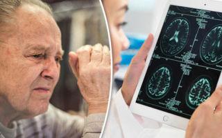 Диагностика болезни Альцгеймера — тесты, анализы