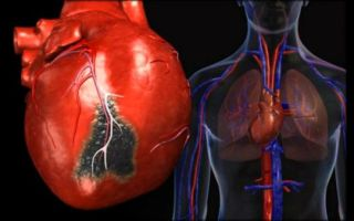 Ишемия сердца в пожилом возрасте — симптомы и лечение