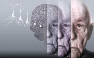 Деменция у пожилых людей — симптомы, виды и лечение болезни