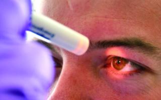 Зрачки при клинической смерти — внешний вид и реакция на свет