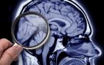 Тесты на деменцию — как распознать первые признаки болезни