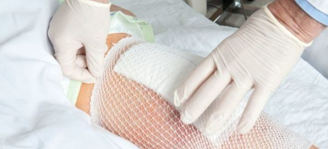 Как обрабатывать пролежни у лежачих больных в домашних условиях?