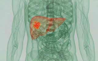 Описание и симптомы рака печени 4 степени с метастазами. Можно ли вылечить и сколько живут при этом диагнозе?