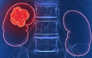 Онкологическое заболевание — рак почки 4 степени: симптомы, комплексное лечение. Сколько живут с метастазами?