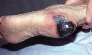 Пролежни на пятке — последствия, стадии, лечение и профилактика