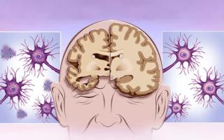 Стадии Альцгеймера и характерные признаки болезни