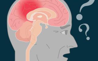 Деменция с тельцами Леви — симптомы, лечение, прогноз