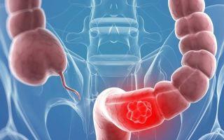 Симптомы и лечение рака кишечника 4 стадии, в том числе с метастазами. Прогноз выживаемости при данной болезни