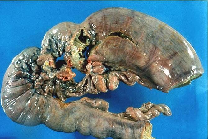 Метастазирование большинства опухолей происходит в тех случаях, когда исчерпаны резервы организма в борьбе с опухолью.