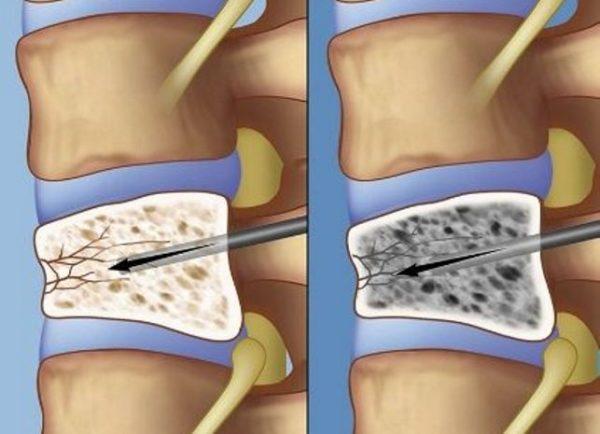 Лечение компрессионного перелома позвоночника у пожилых