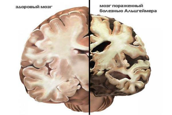 Лечение Альцгеймера препараты для лечения болезни Альцгеймера