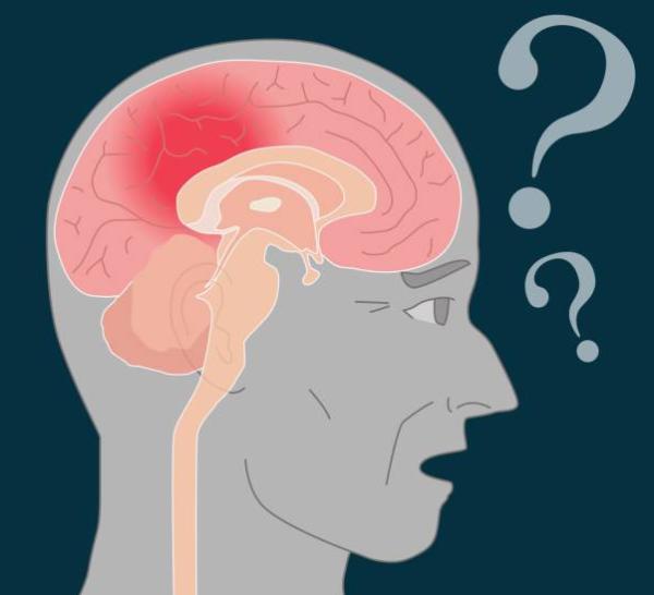 Излечима ли сосудистая деменция и сколько живут с таким диагнозом