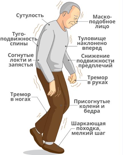 Болезнь паркинсона кратко