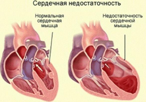 Как проявляется сердечная недостаточность у пожилых людей