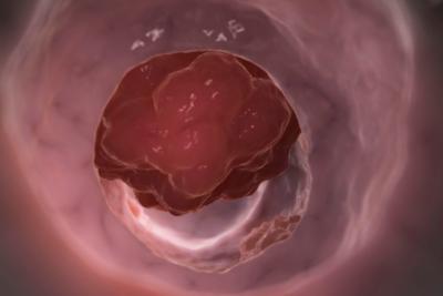 Рак печени 4 степени с метастазами сколько живут Своевременное лечение